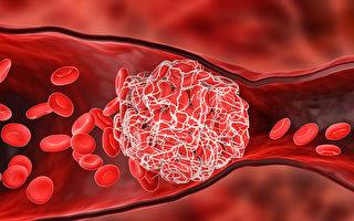 感染新冠後也出現血栓!是普通人近100倍