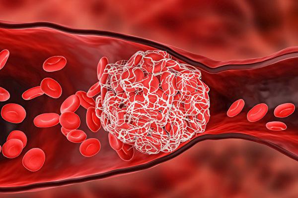 感染新冠肺炎(Covid-19)后出现脑静脉血栓的概率,是注射AZ疫苗后的10倍,更是普通人发病率的100倍。(Shutterstock)