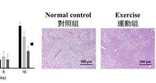懒人运动法有望改善脂肪肝  长庚大学新发现