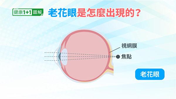 玻璃體內出現了一些漂浮物,像蚊子似的飛來飛去, 就是飛蚊症。(健康1+1/大紀元)