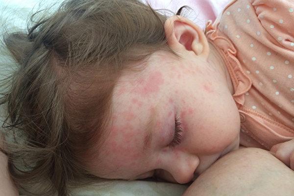 玫瑰疹的典型特征是高烧后起红疹,而且红疹出现后,高烧便会消退。(Shutterstock)