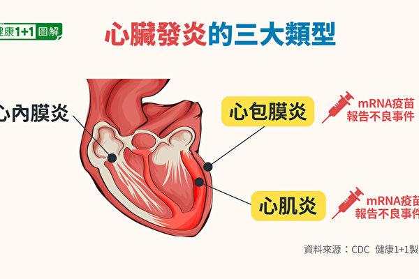 【疫情6.24】FDA:mRNA疫苗恐致心脏发炎