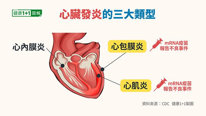心脏发炎分为心肌炎、心包炎和心脏外膜炎,接种mRNA疫苗后出现的是前两种。(健康1+1/大纪元)