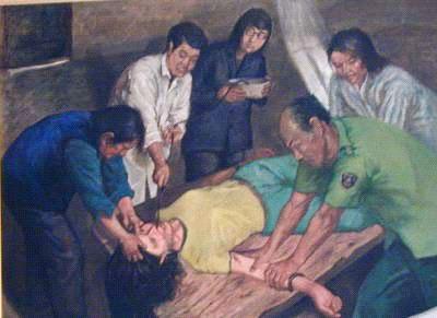 【中共酷刑】:欲致人于死地的强行灌食