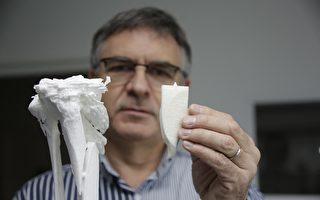 組圖:法國新人工骨技術 傷者有望免截肢