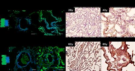 人类肺部细胞切片,可以发现年纪越大,细胞衰老以及型态也变得更大。