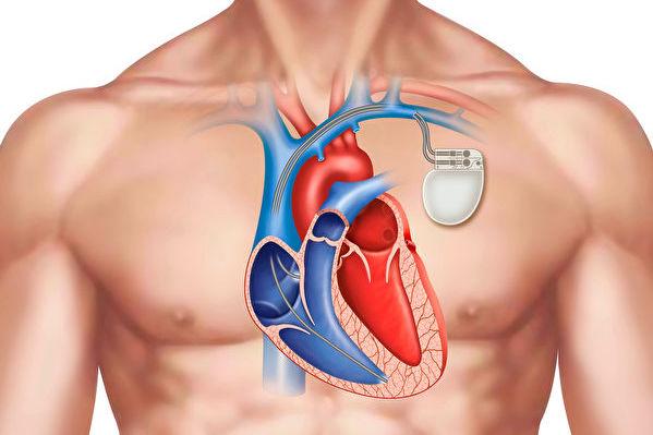 新發明心臟起搏器 不用取出可在體內溶解