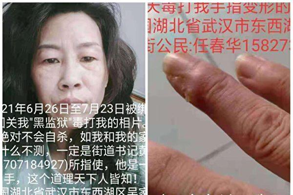 武漢女訪民被關入黑監獄28天 遭電擊虐待