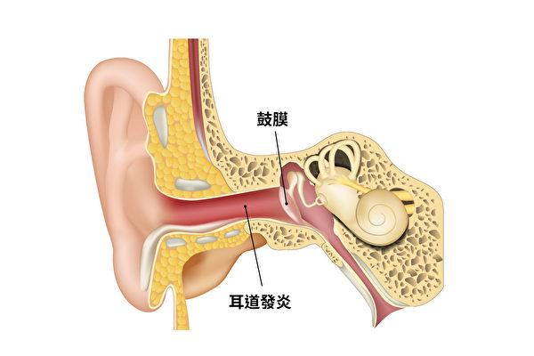 外耳炎,又稱游泳耳,是指耳膜到外邊耳朵的通道發炎了。(Shutterstock)
