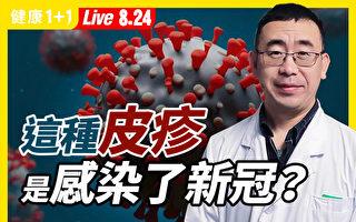 【重播】1/5新冠患者 皮肤红疹是唯一症状