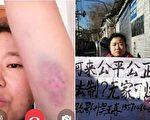 在京遭暴力截訪 湖北訪民:連犯人都不如