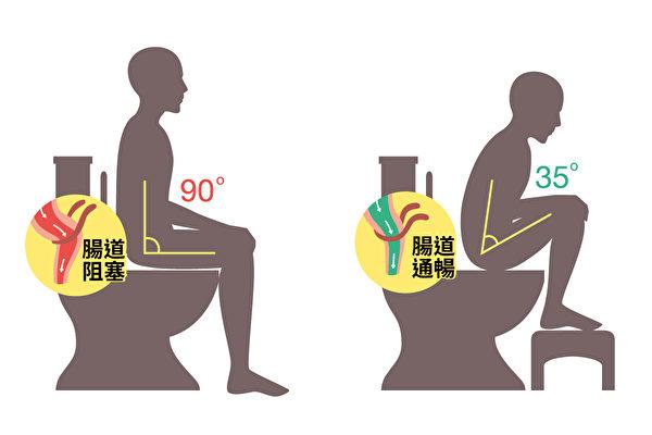 正确的上厕所姿势可以促进排便。(Shutterstock/大纪元制图)