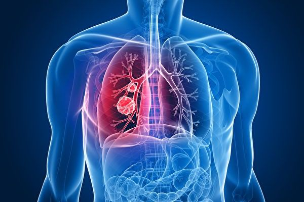 從不吸菸為何得肺癌? 新研究析因由