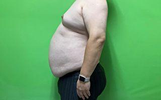 二個月減15公斤 胃鏡縮胃手術輕鬆減重