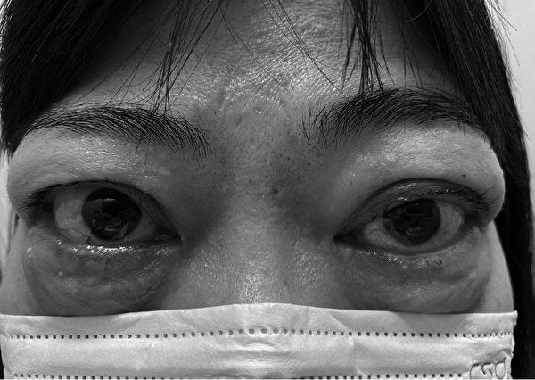 長期甲狀腺亢進可能會將眼球往外推。(圖片摘自《眼癒力》一書)