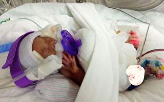 世界最輕新生兒僅一蘋果重 住院13月後回家